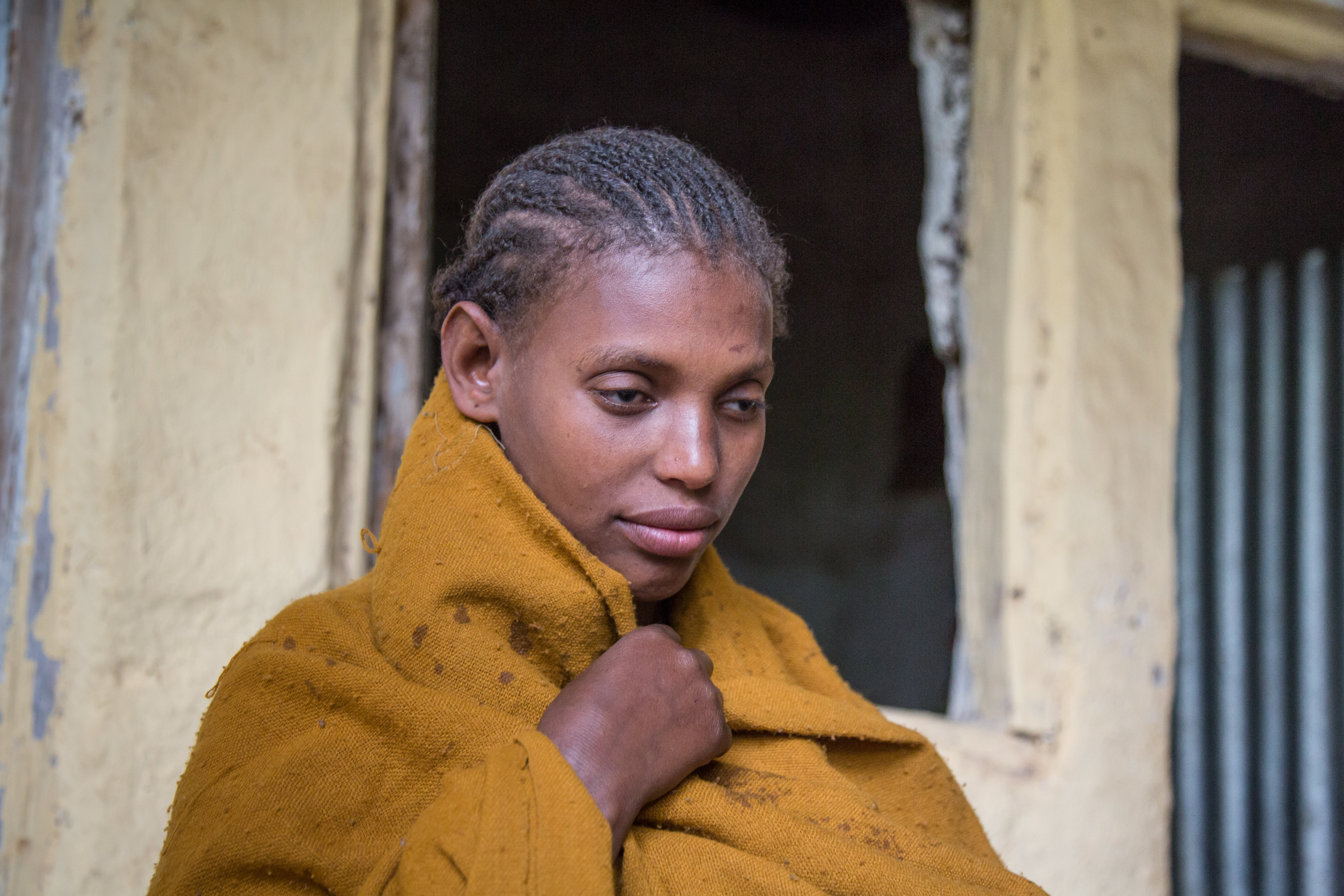 An adolescent girl who is blind in Amhara, Ethiopia